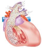 心臓に寄生したフィラリア虫体
